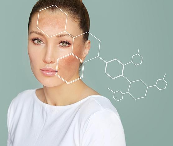 Soins du visage pour peaux hyperpigmentées